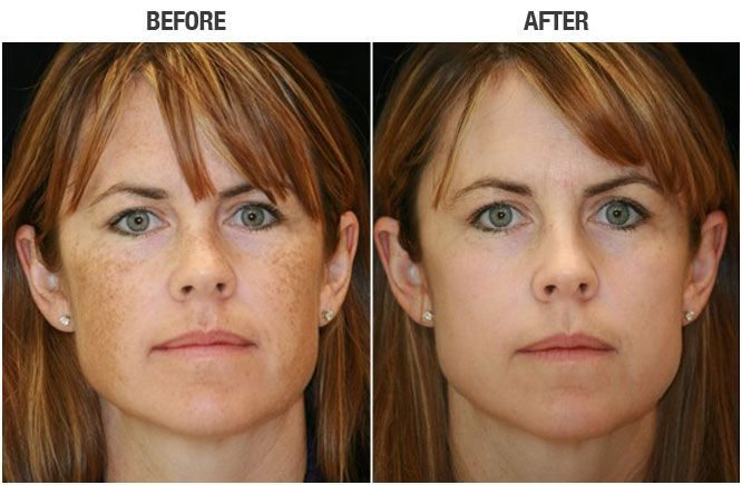 Ipl Photofacial Before And After Www Skinologymedicalspa