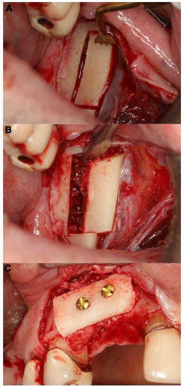 Figure 5 Harvesting of a corticocancellous ramus bone graft (right mandible).