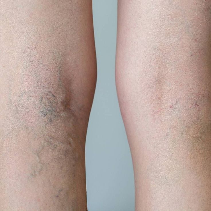 8 Best Varicose Veins In Feet Images On Pinterest. Employee Payroll Software Dallas Glass Repair. Texas Medical Malpractice Attorneys. Computer Assisted Technology. Split Hvac System Cost Accounts Payable Tasks. Printer Shipping Labels Credit Card Junk Mail. Masters In Healthcare Administration Requirements. Garage Doors Repair Cost Goldman Sachs Review. How Do You File Bankruptcy Drug Abuse Causes