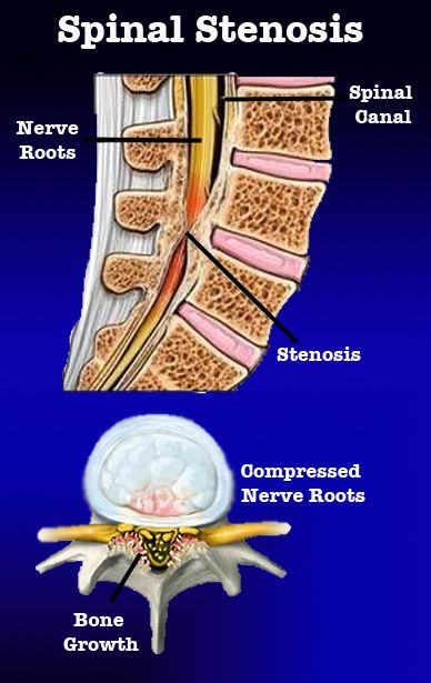 What is Stenosis of the Spine? #DrJeff #BackPainBlog #Stenosis. i have lateral recess stenosis