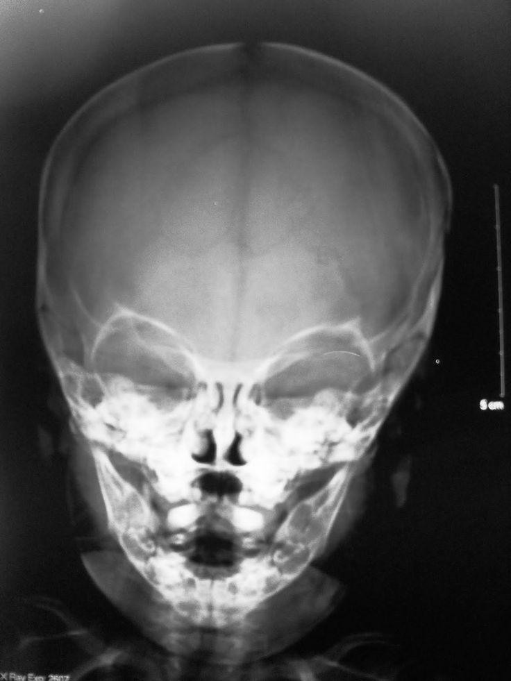 Radiografía del cráneo visto de frente. ¿Observa diferencias con las otras imágenes? En caso afirmativo o negativo fundamente.