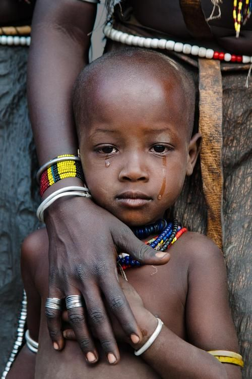 by Steve McCurry just look at that precious face that is in pain... its breaking my heart... :(((