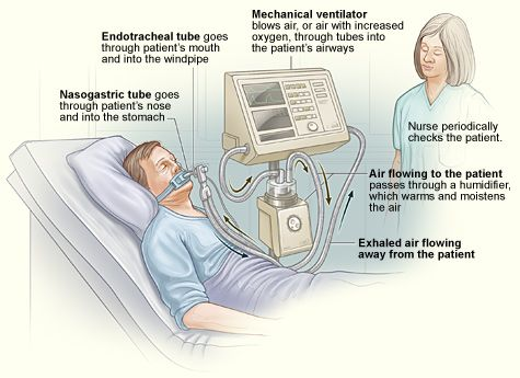ventilation illustration -- Myasthenic Crisis may result in a ventilator (been there/done that!)