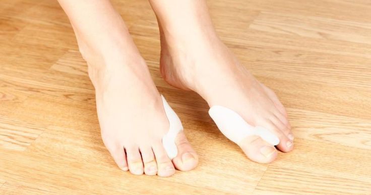 Bunions are a common and progressive deformity caused by a structural abnormality in the foot. Over time, they appear as an increasingly large bump on the side of the foot or at the base of the big toe. Early bunions cause no symptoms, according to the American College of Foot and Ankle Surgeons, but as the condition progresses, pain, inflammation,...