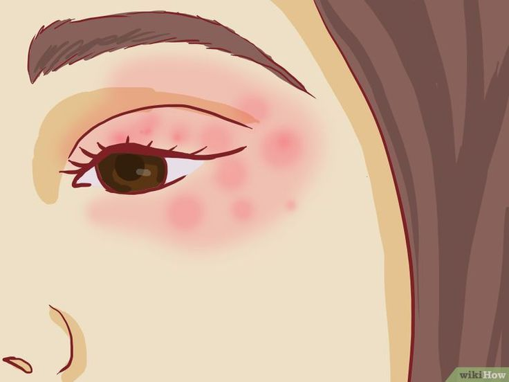 How to Treat Eczema Around the Eyes (with Pictures) - wikiHow #EczemaProducts