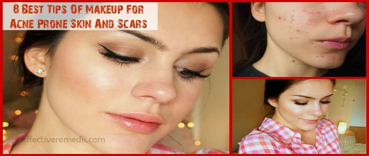 8 Best Tips Of Makeup For Acne Prone Skin And Scars acne  cure naturally is every one lookfing for check here http://skinremarkable.com