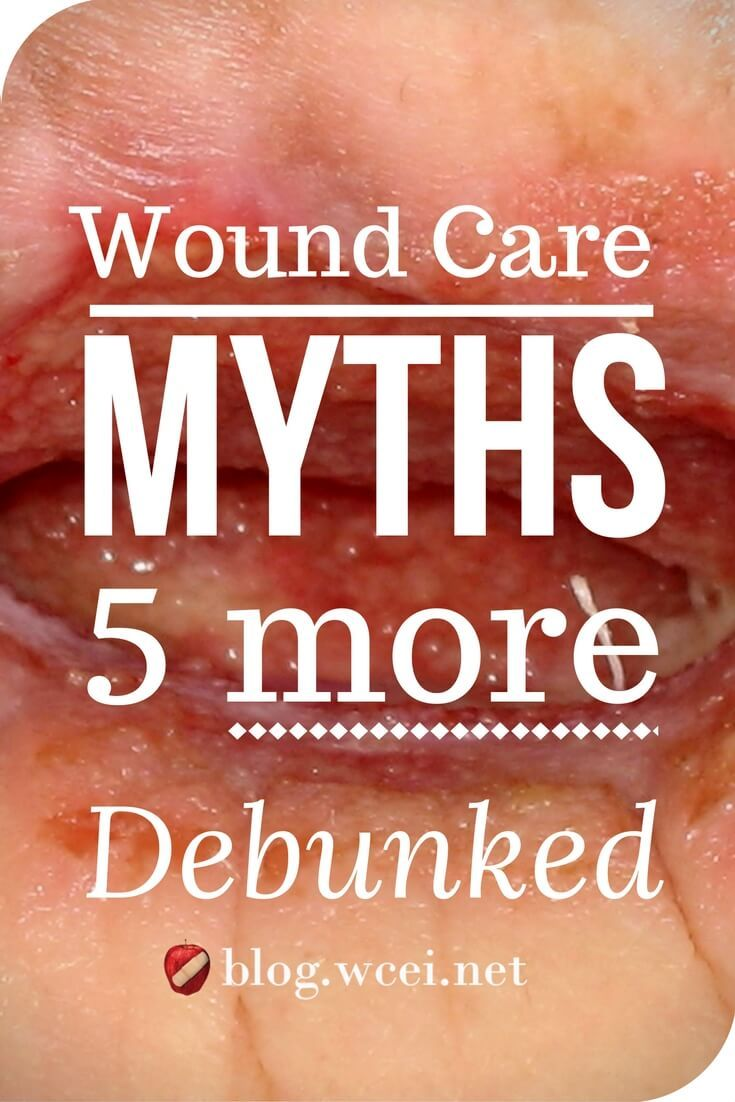 the care of wound a guide for nurses