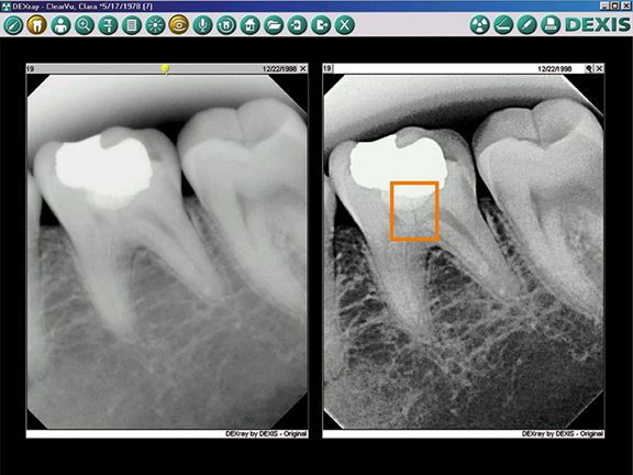 We are pleased to provide our new Dexis Digital X-ray system to our Garden Cityarea patients. There are so many advantages to our patients with the addition of this new system in our practice. Advantages include increased patient comfort; up to 80% reduction in radiation exposure; shorter waiting time for results; better understanding on the part of the patient of their dental condition.