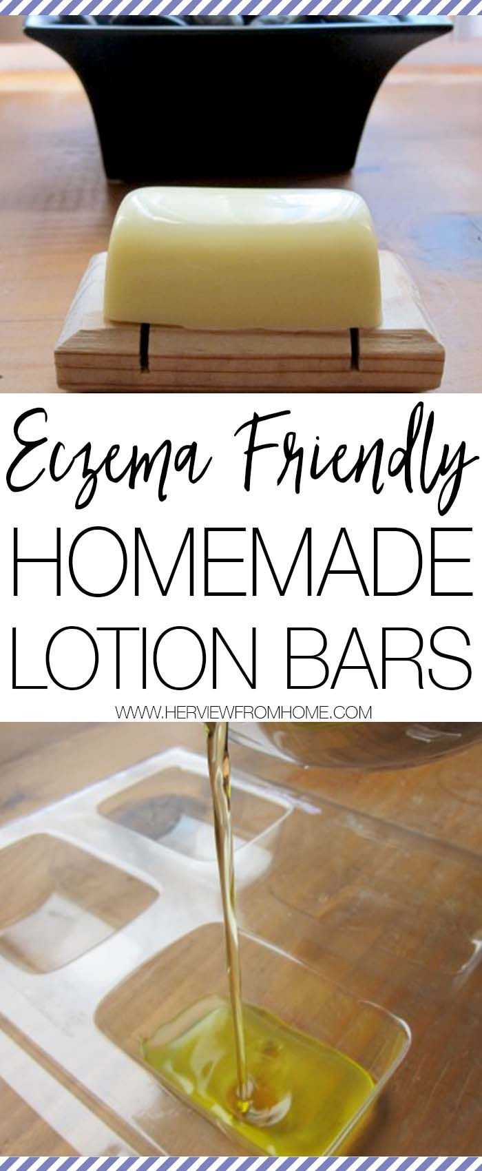 It can be so difficult to find lotion that doesn't irritate sensitive skin. These eczema friendly homemade lotion bars are amazing for allergies and skin reactions - but also fantastically moisturising too! - Need to make this for the kids !