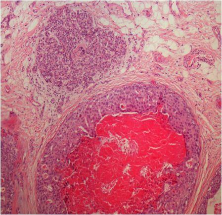 Eccrine spiradenocarcinoma- tumora maligna a glandelor sudoripare derivata din eccrine spiradenoma www.medpont.ro