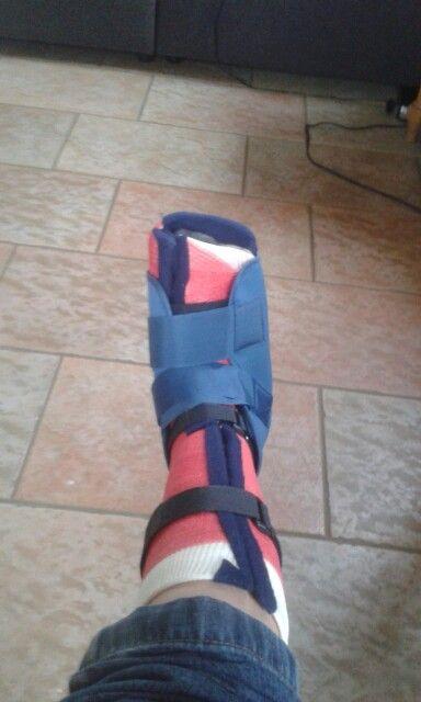 Tijdelijke schoen  (teen gebroken)