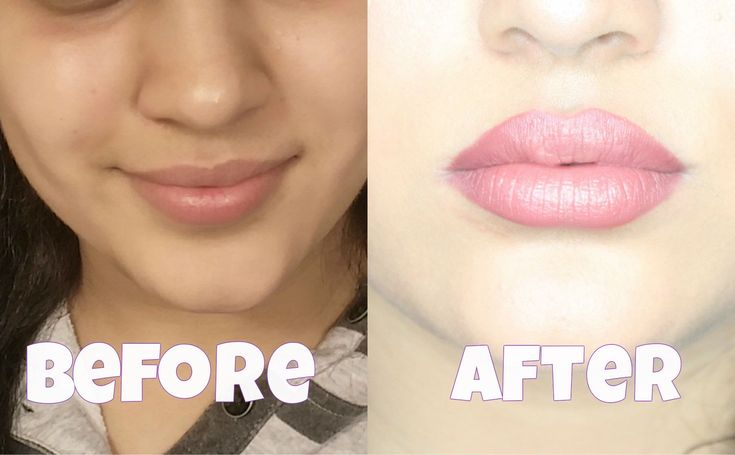 how to get fuller lips overnight