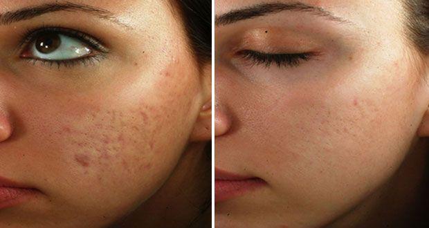 Extrêmement Masque à la carotte contre les cicatrices d'acné ! | Cicatrice, La  GM38