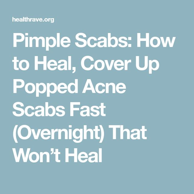 Pimple Scabs: How to Heal, Cover Up Popped Acne Scabs Fast (Overnight) That Won't Heal