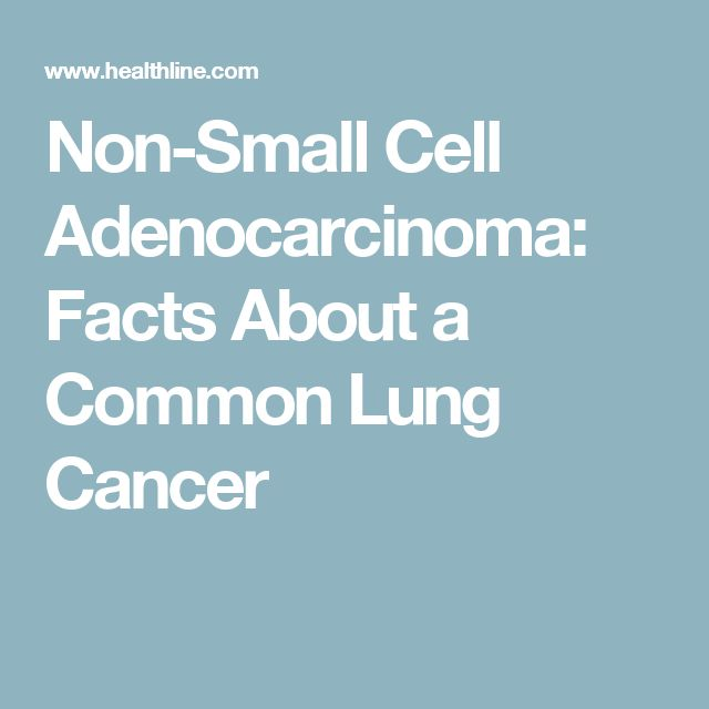 Non-Small Cell Adenocarcinoma: Facts About a Common Lung Cancer