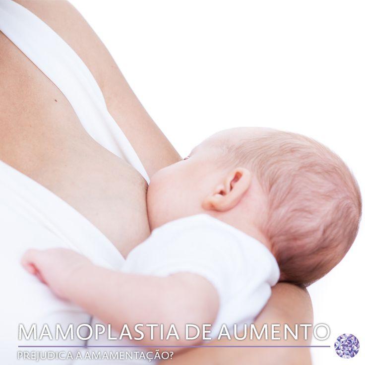 Isso é um mito, pois as próteses de silicone são colocadas abaixo da glândula mamária ou abaixo do músculo e não há nenhuma lesão dos ductos que transportam o leite até o mamilo. Portanto, despreocupe-se! Saiba mais sobre os mitos e verdades da mamoplastia de aumento no nosso site!