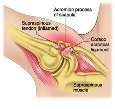 Shoulder Pain - Clínica de Artrosis y Osteoporosis www.clinicaartrosis.com PBX: 6836020 en Bogotá - Colombia.