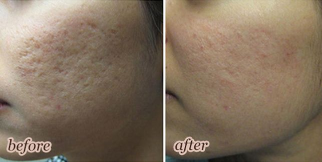 Give yourself new youthful look with the help of Fractional laser technology sometimes referred as Pixel. To know the greatness of this new technology book your appointment with redeemmedispa.com in Brampton and do your skin assessment today.