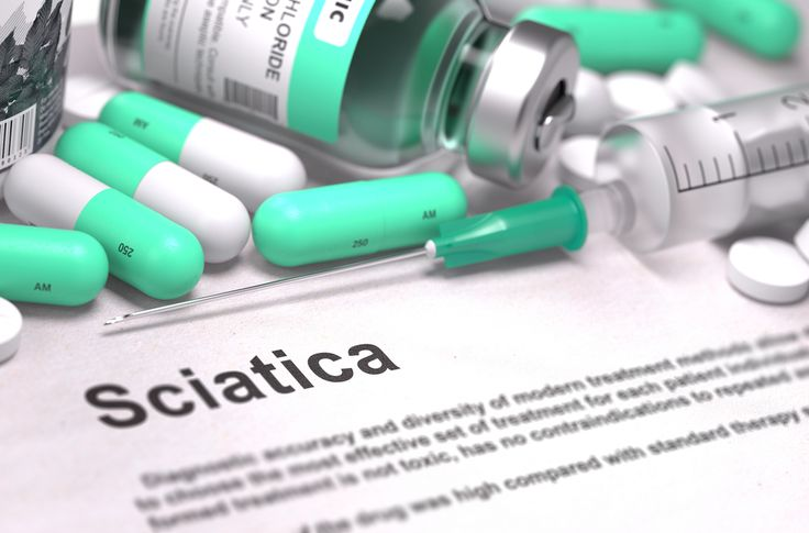 Specialists at Cleveland Clinic's Center for Spine Health, characterize sciatica as several symptoms rather than a diagnosis.