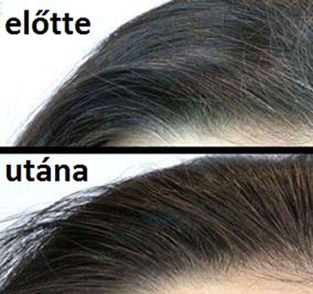 Hihetetlen, de mégis igaz: ez a mágikus ital eltávolítja az ősz hajat! - Megelőzés - Test és Lélek - www.kiskegyed.hu