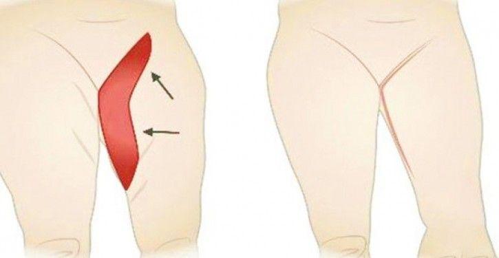 Voici comment vous débarrasser de la graisse de l'intérieur des cuisses !