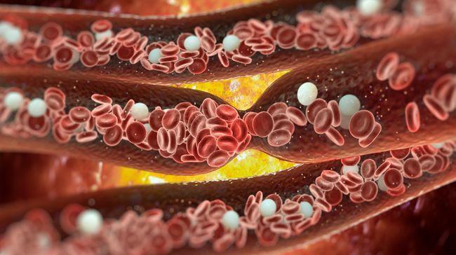 Upchaté cievy – prezradí ich týchto 8 príznakov