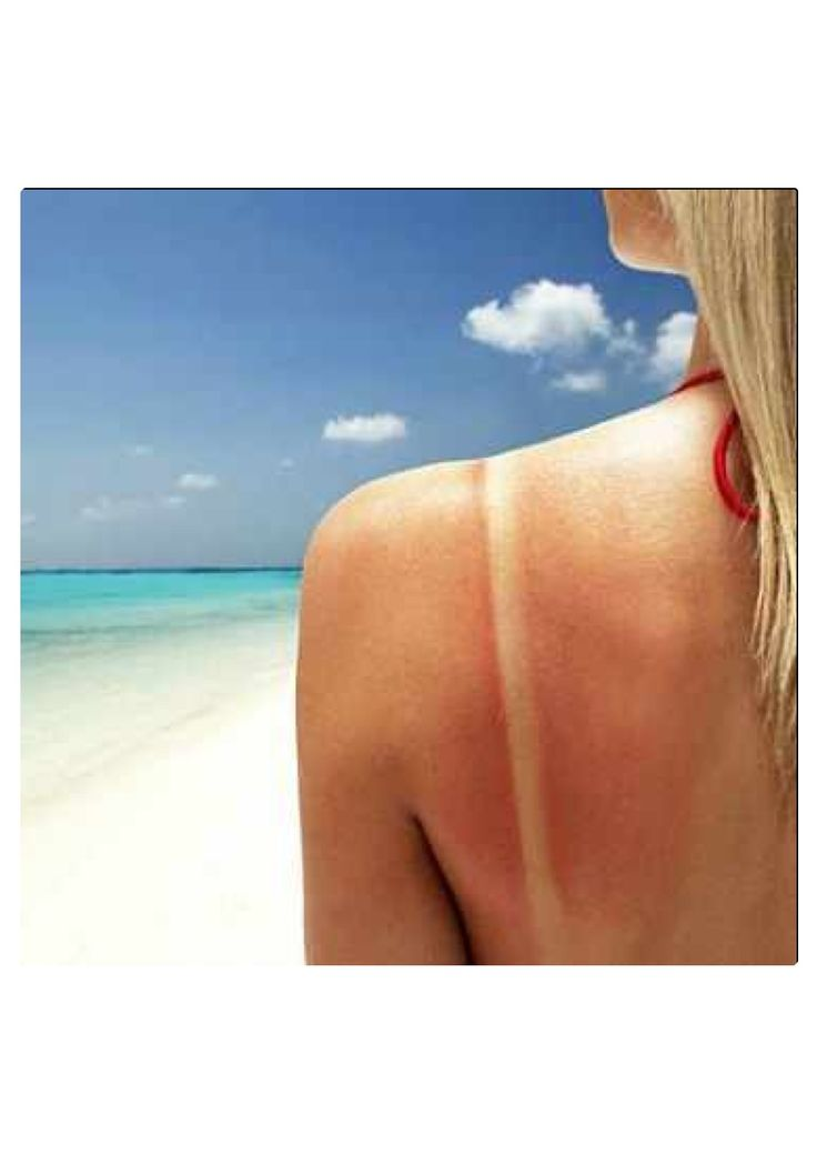 Having red splotches on your skin? This could be a sign of sun allergy. The most common is polymorphic light eruption, which often shows up - sometimes within minutes - as an itchy red rash on body parts exposed to sunlight, especially the neckline, the backs of the arms, the face and the hands. Be sure to discuss your symptoms with your doctor so she can figure out what's going on. And, of course, if you're prone to bad reactions when you bask, be vigilant about using sunblock and covering…