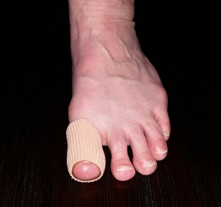 Silicone gel toe sleeve on the big toe to prevent big toe blisters (by reducing pressure and absorbing shear).