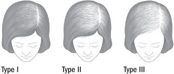 ANDROGENETIC ALOPECIA In women, androgenetic alopecia begins with gradual thinning at the part line, followed by increasing diffuse hair loss radiating from the top of the head. A woman's hairline rarely recedes, and women rarely become bald.