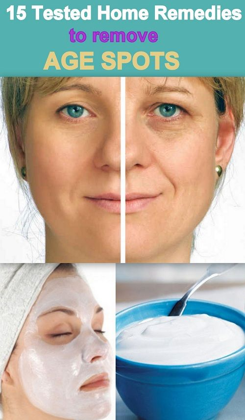 15 Tested and Effective home remedies to remove age spots, that really work. No anti-aging cream, no harmful products, All herbal and natural ways to get rid of age spots, wrinkles and fine lines. http://www.feminiya.com/15-useful-home-remedies-for-removing-age-spots/
