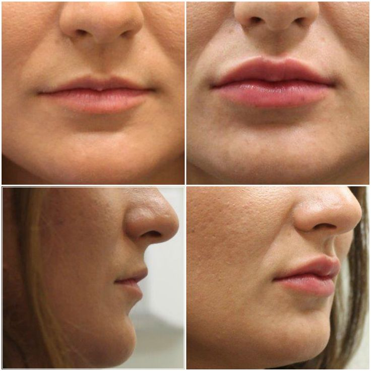Lip-filler-before-and-after-the-private-clinic-bristol.jpg (2400×2400)