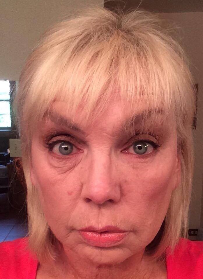 All of our images are from real customers, who have tried and tested our amazing award winning Instantly Ageless. Whether you have deep wrinkles, deep lines, or fine lines. You may have heavy under eye bags, or deep under eye bags, whichever it maybe Instantly Ageless can help you. Works in 2 minutes, under eye bags are gone. You can view my videos here:https://youtu.be/0hjyMWoRdik?list=PL3TkJZH7UgAW1JVUe-tGips77u05jt1k1 https://youtu.be/kSaW6drhi4E?list=PL3TkJZH7UgAW1JVUe-tGips77u05jt1k1…