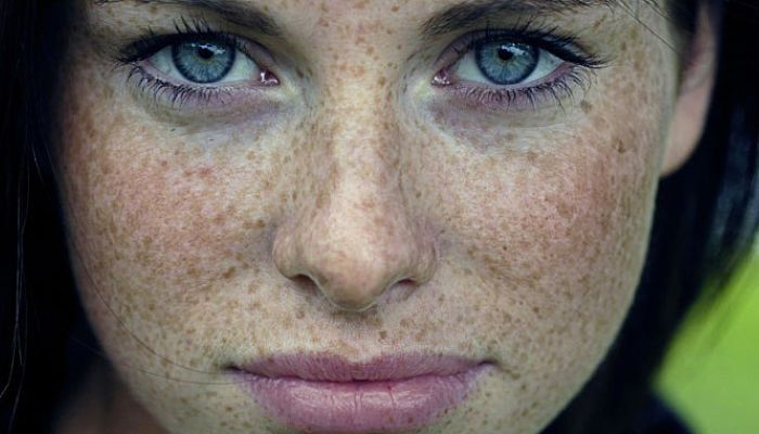 manchas marrones en la cara