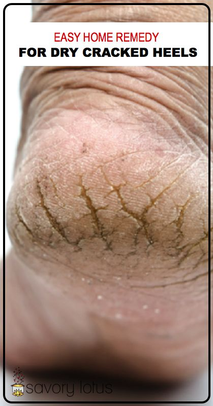 Easy Home Remedy for Dry Cracked Heels - www.savorylotus.com