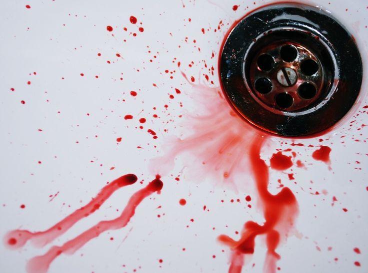 Krwawienie z nosa - pierwsza pomoc