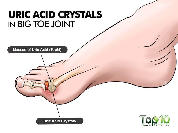 medicamentos para disminuir el acido urico verduras para el acido urico que tomar para el acido urico remedios caseros