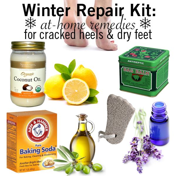 Winter Repair Kit: Easy At-Home Remedies for Dry feet Cracked Heels