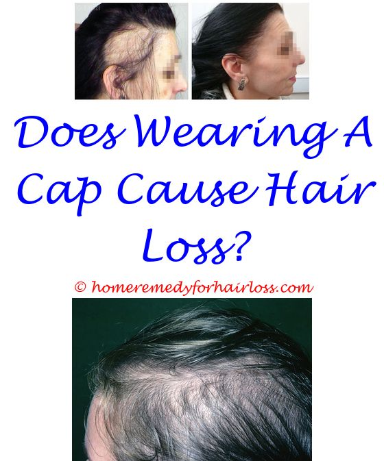 aussie dry shampoo hair loss - dog hair loss color change.increased weight hair loss comstapation alcohol denat hair loss autoimmune conditions that cause hair loss 6543195588