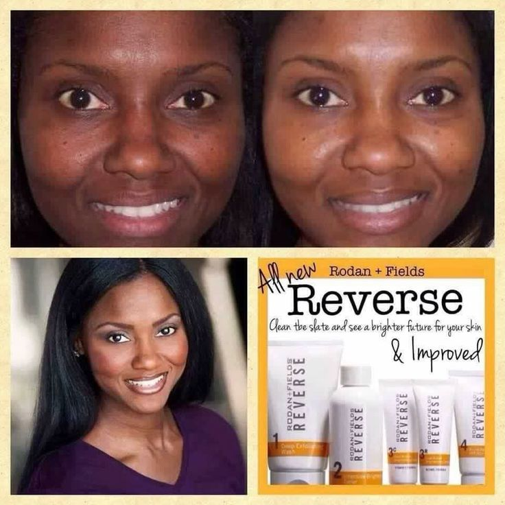What are the benefits of using the Reverse Regimen?   Vitamin C + retinol, which gives brighter and more even looking skin tone. Fades dark marks and patches including melasma, which is a skin problem that causes brown to gray-brown patches on the skin.   Try it out for 60 days and if it doesn't work for you, you can return it for a FULL refund. Click the photo to order NOW!!!