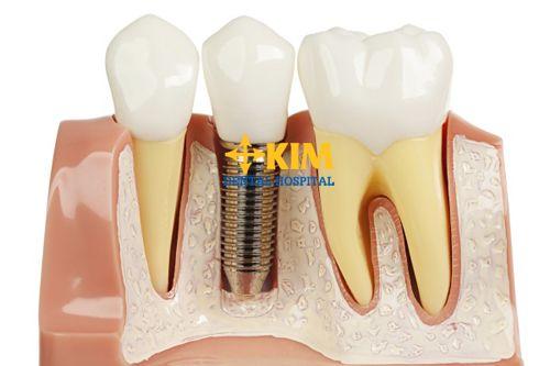 Implant nha khoa - Kỹ thuật phục hình răng thông minh và tân tiến