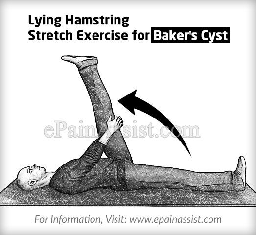 Lying Hamstring Stretch Exercise for Baker's Cyst or Popliteal Cyst