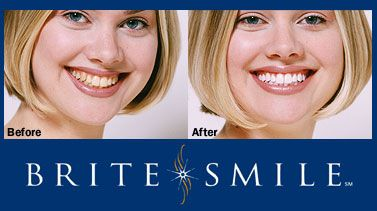 Brite Smile is a professional take-home DIY teeth whitening kit you can pick up from your dentist