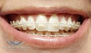 6 Month Smiles Cosmetic Braces
