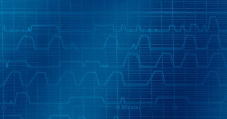 ¿Cuáles son las ondas superficiales?. Las ondas superficiales son ondas que se encuentran atrapadas cerca de la superficie de la tierra. Este tipo de ondas son importantes en sismología, como una manera de describir algunas olas causadas por los terremotos, así como en la radio para describir la propagación de ondas de radio. Las ondas superficiales pueden ser de naturaleza mecánica o ...