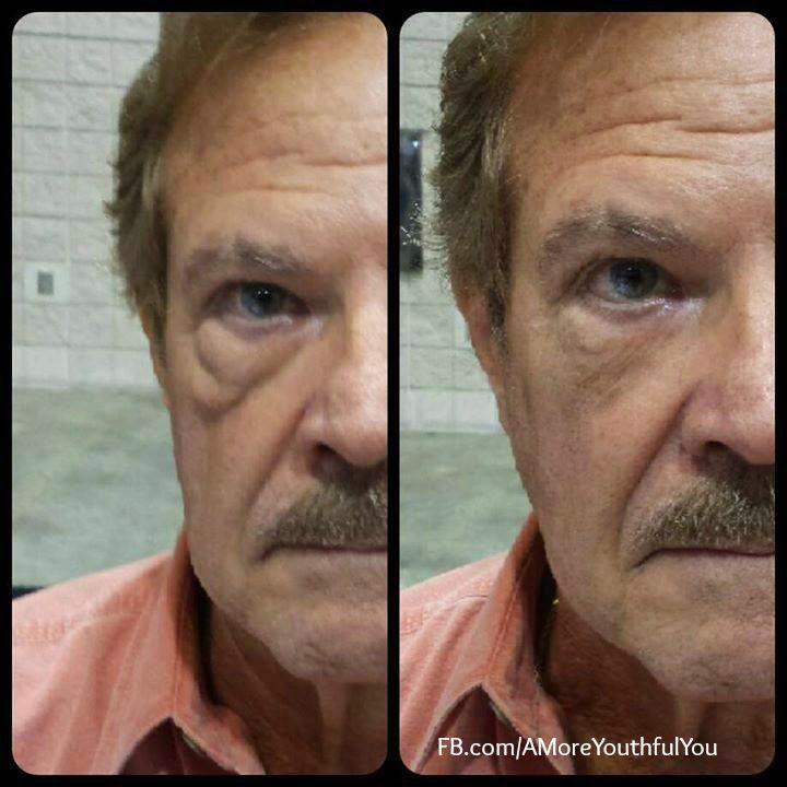 Yes Instantly Ageless works for men as well! Our Anti-Aging Skincare is amazing. This product works in just 2 minutes! http://thrivingeyes.juenesseglobal.com