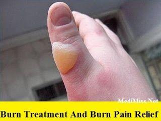 Burn Treatment And Burn Pain Relief ~ MediMiss