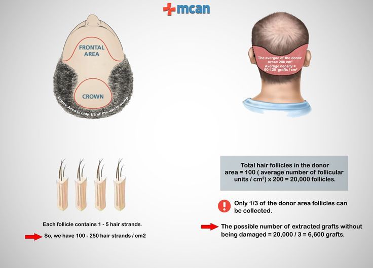 In fact, #hair_transplantation is a process, a process of #hair_redistribution. There is no new hair involved, there is no cloning of hair (at least not yet), it is moving hair from one place of the head to another: redistribution!...  Read more here https://mcanhealth.com/en/blog/post/will-a-hair-transplant-do-to-cover-all-the-balding-and-receding-parts