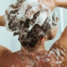 how to get rid of psoriasis on scalp