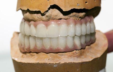 1000 Ideas About Dental Implants On Pinterest Dental