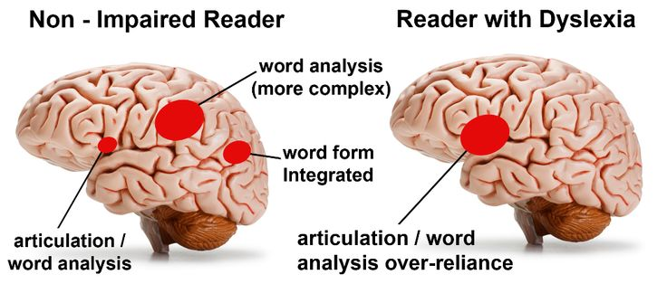 Left Brain Right Brain and Its Effect on Study Habits